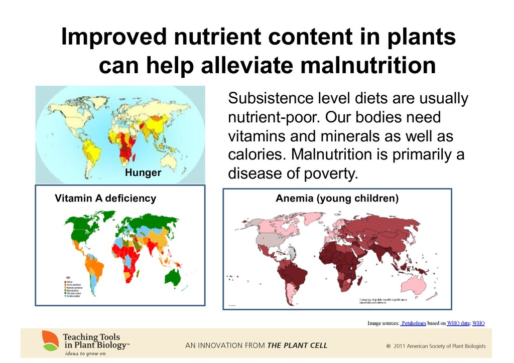 Vitamin A deficiency Hunger Subsistence level d...