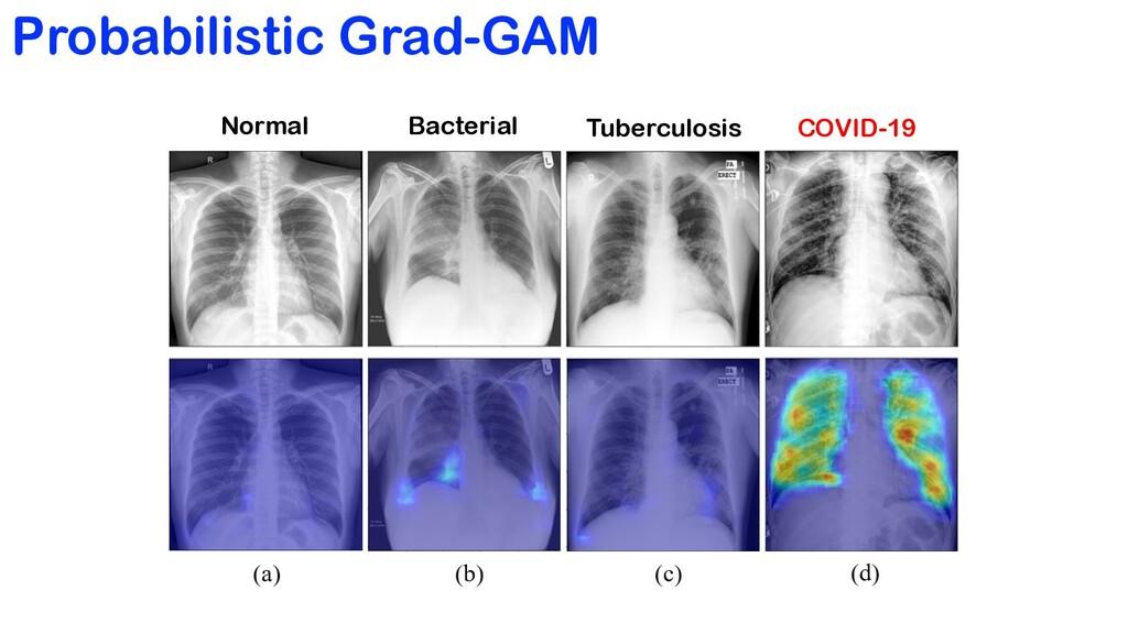 Probabilistic Grad-GAM Normal Bacterial Tubercu...