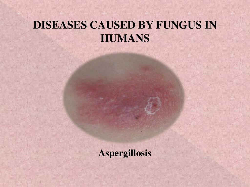 DISEASES CAUSED BY FUNGUS IN HUMANS Aspergillos...