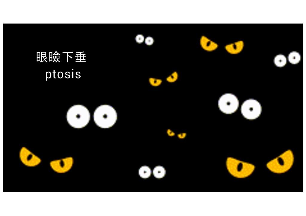 眼瞼下垂 ptosis
