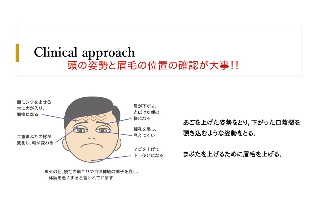 Clinical approach あごを上げた姿勢をとり,下がった口蓋裂を 覗き込むような姿...