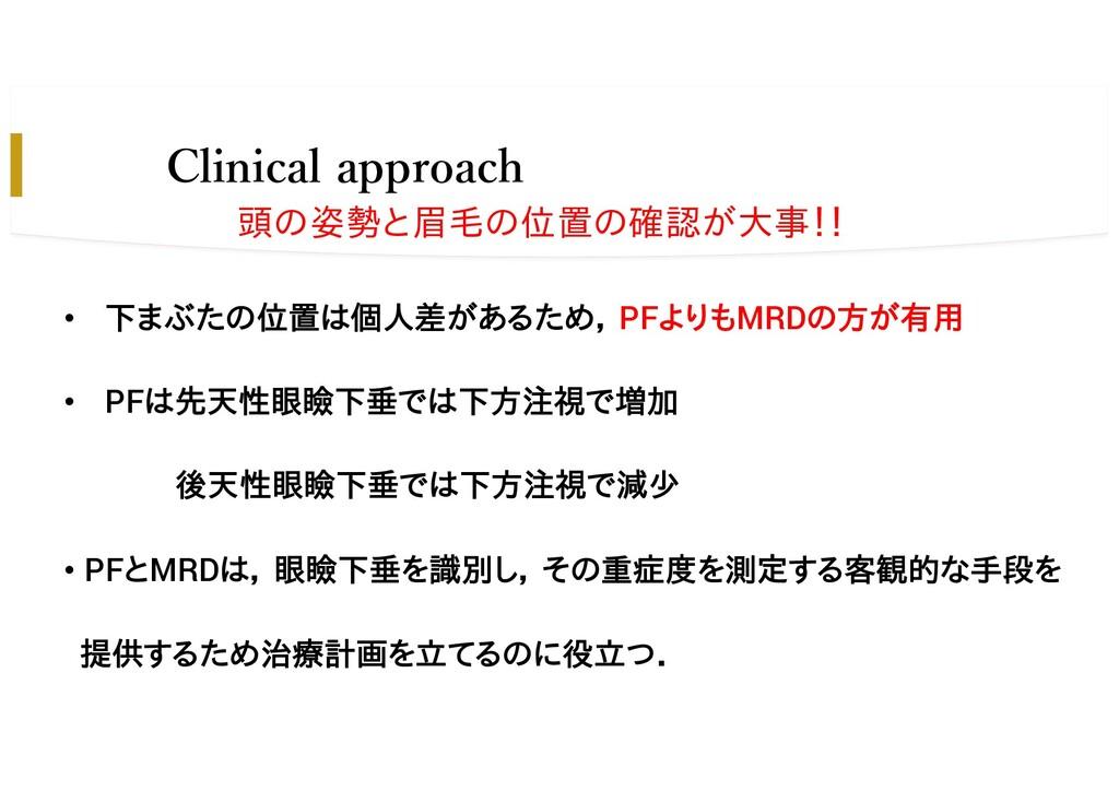 Clinical approach • 下まぶたの位置は個人差があるため, PFよりもMRDの...