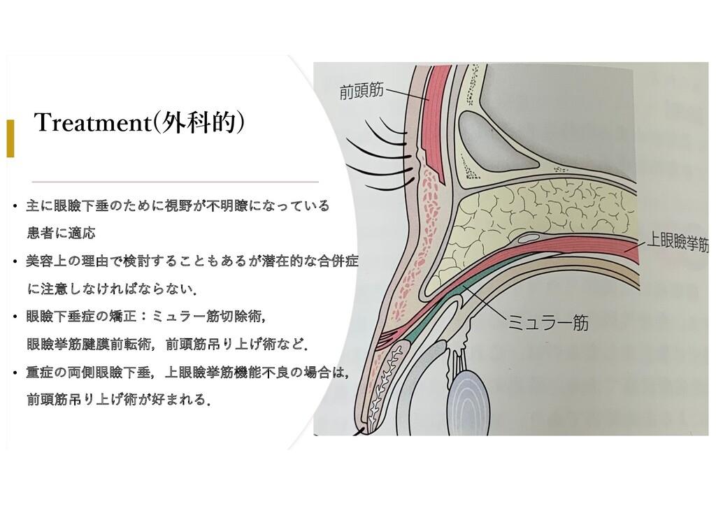 Treatment(外科的) • 主に眼瞼下垂のために視野が不明瞭になっている 患者に適応 •...