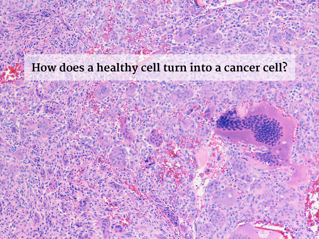 How does a healthy cell turn into a cancer cell?