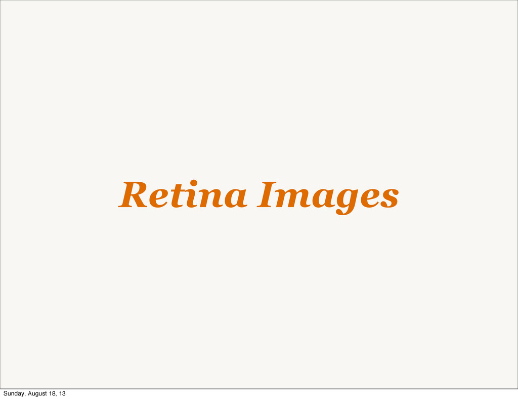 Retina Images Sunday, August 18, 13