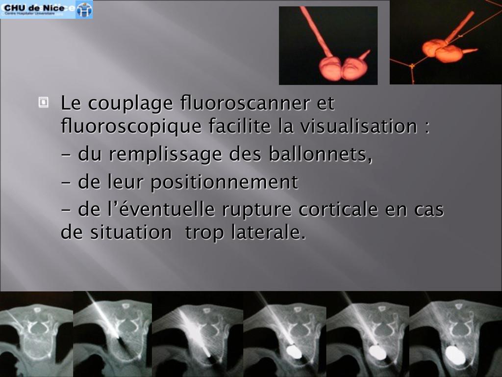  Le couplage fluoroscanner et fluoroscopique fac...
