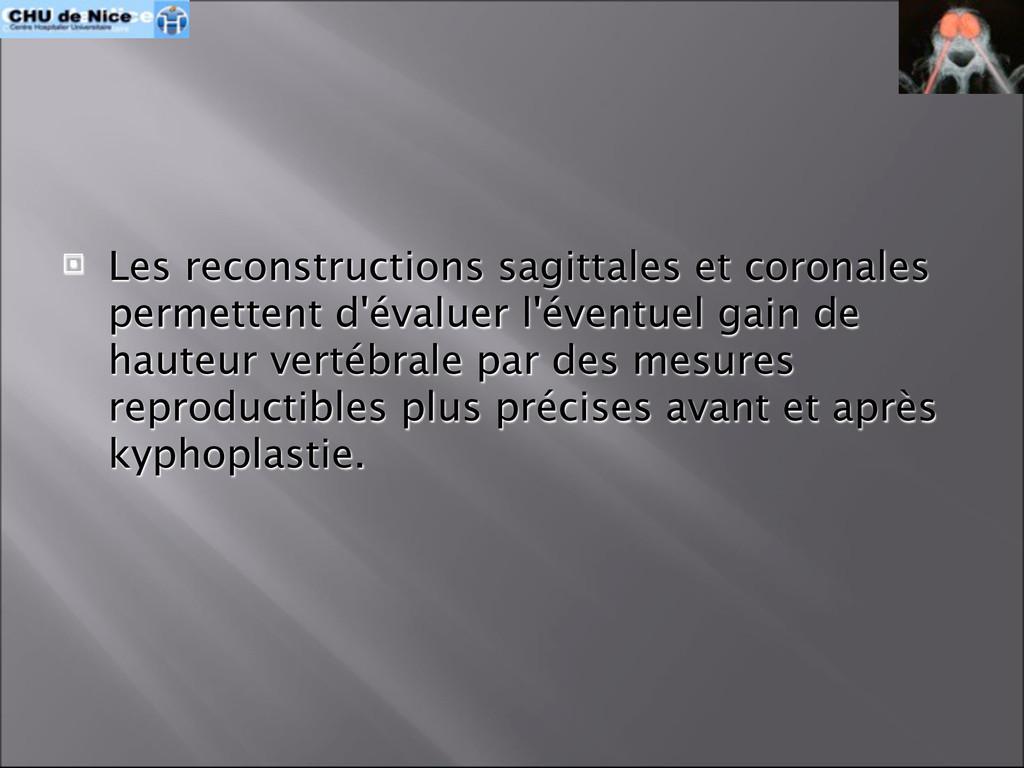  Les reconstructions sagittales et coronales p...