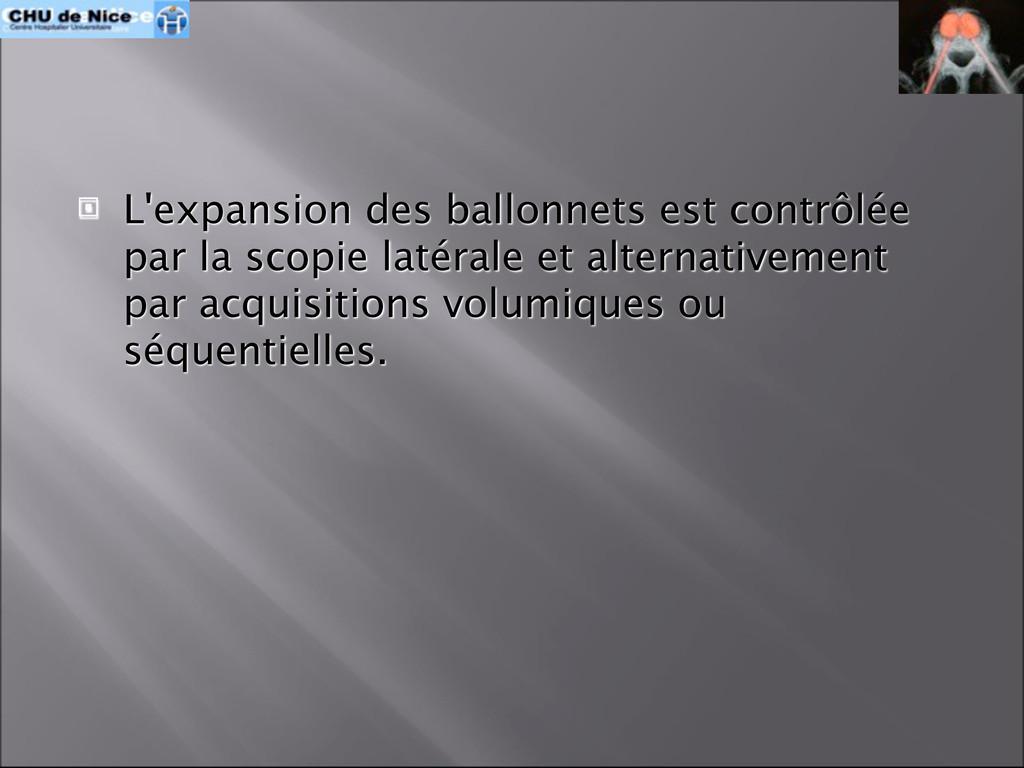  L'expansion des ballonnets est contrôlée par ...