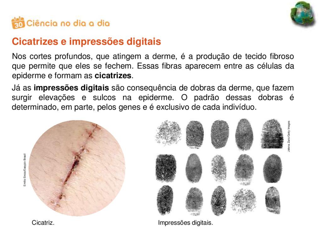 Cicatrizes e impressões digitais Jelena Zaric/G...