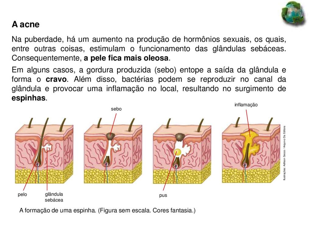 glândula sebácea Ilustrações: Adilson Secco / A...