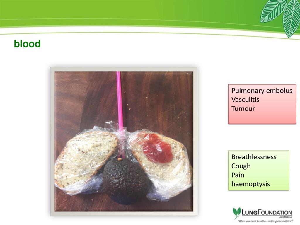 blood Pulmonary embolus Vasculitis Tumour Breat...