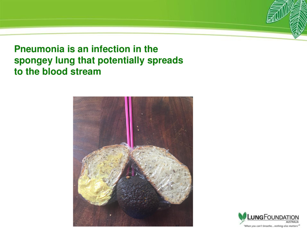 Pneumonia is an infection in the spongey lung t...