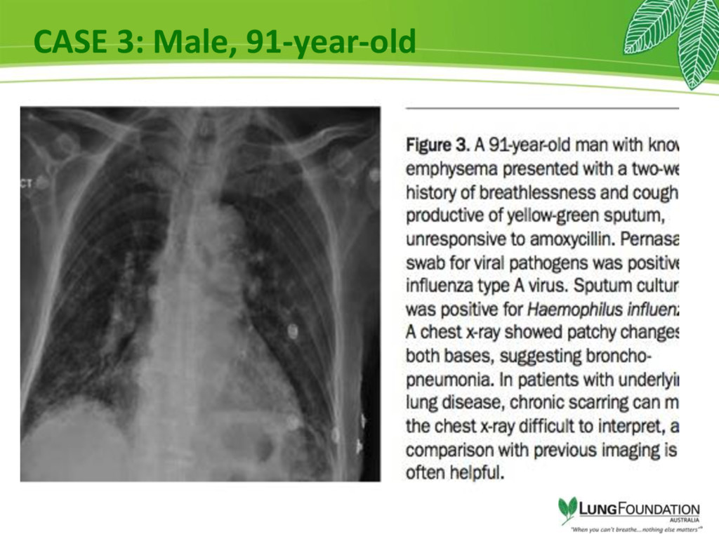 CASE 3: Male, 91-year-old