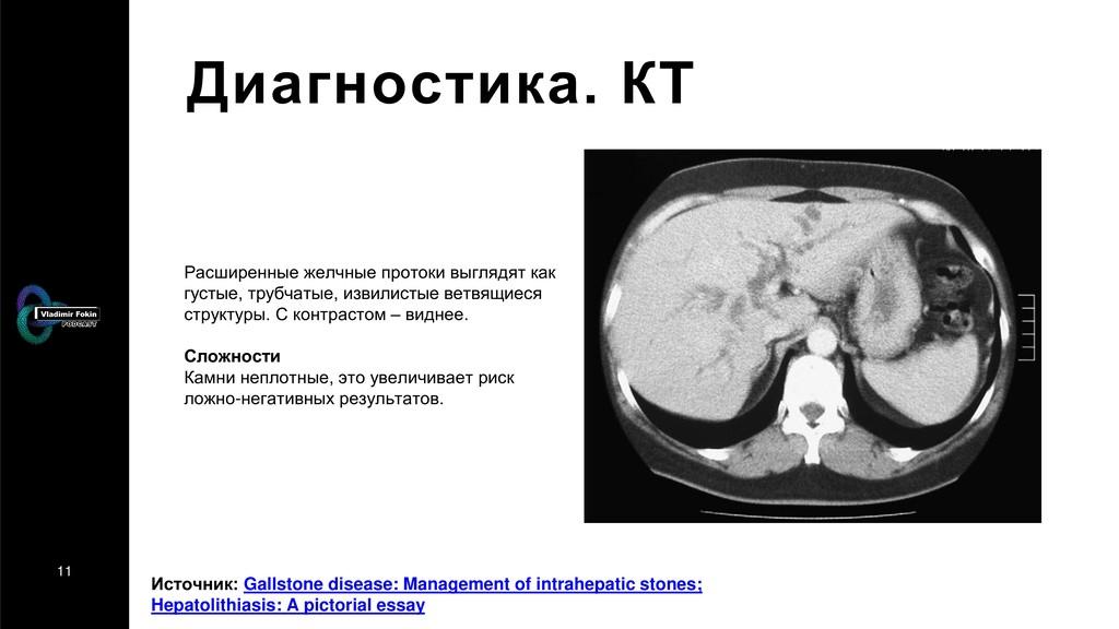 11 Диагностика. КТ Расширенные желчные протоки ...