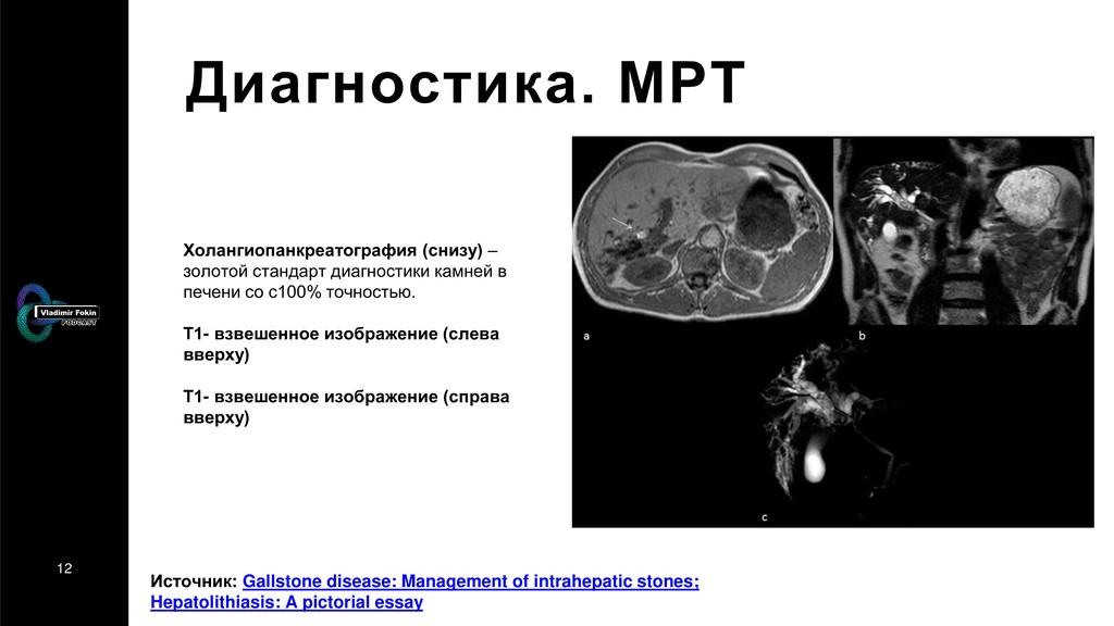 12 Диагностика. МРТ Холангиопанкреатография (сн...