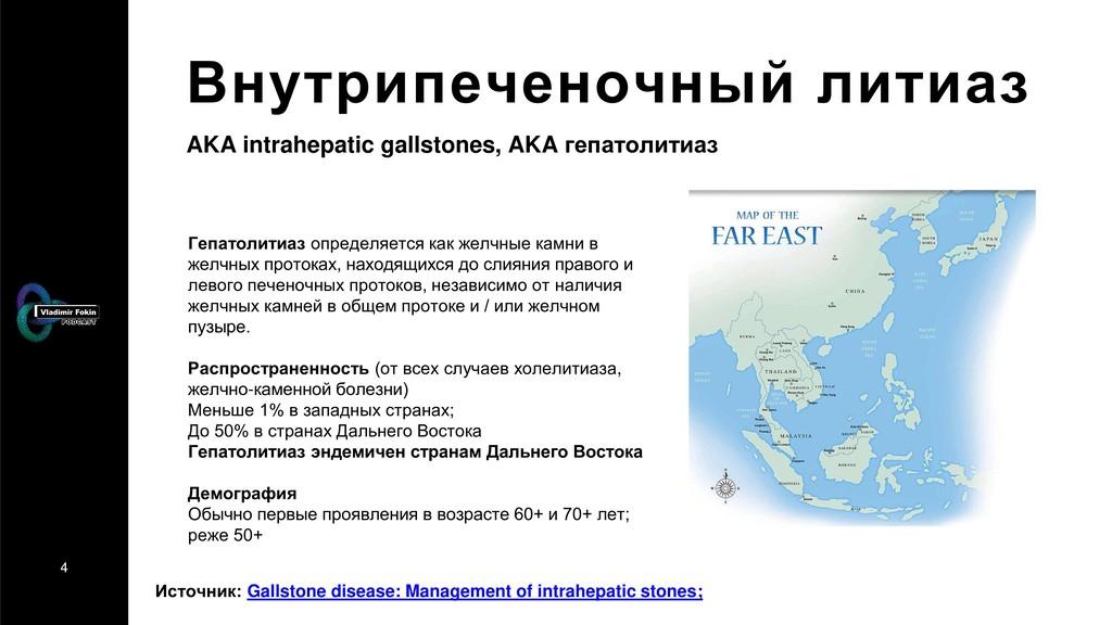 4 Внутрипеченочный литиаз Источник: Gallstone d...