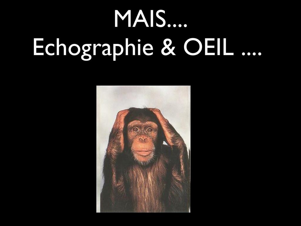 MAIS.... Echographie & OEIL ....