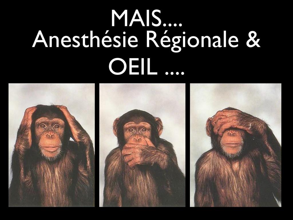MAIS.... Anesthésie Régionale & OEIL ....