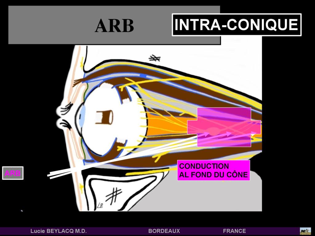 ARB CONDUCTION AL FOND DU CÔNE ARB INTRA-CONIQU...