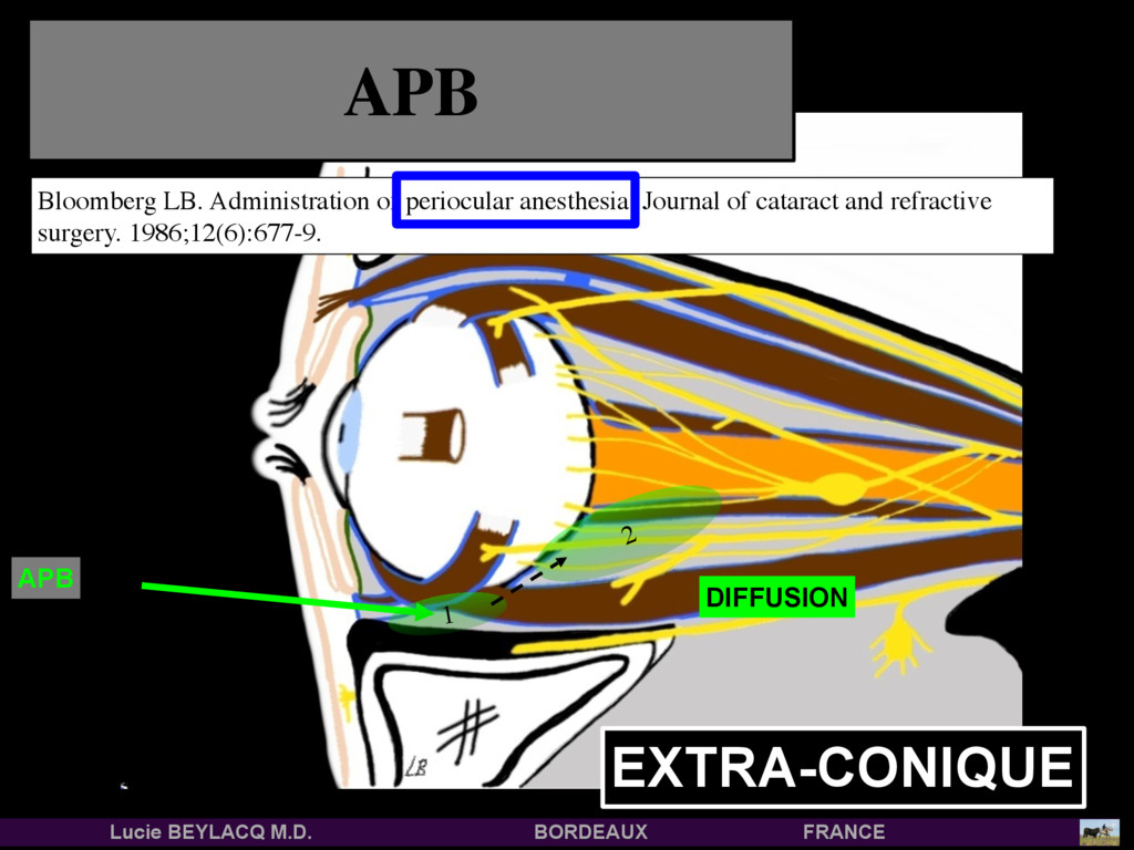 2 1 APB APB EXTRA-CONIQUE Bloomberg LB. Adminis...