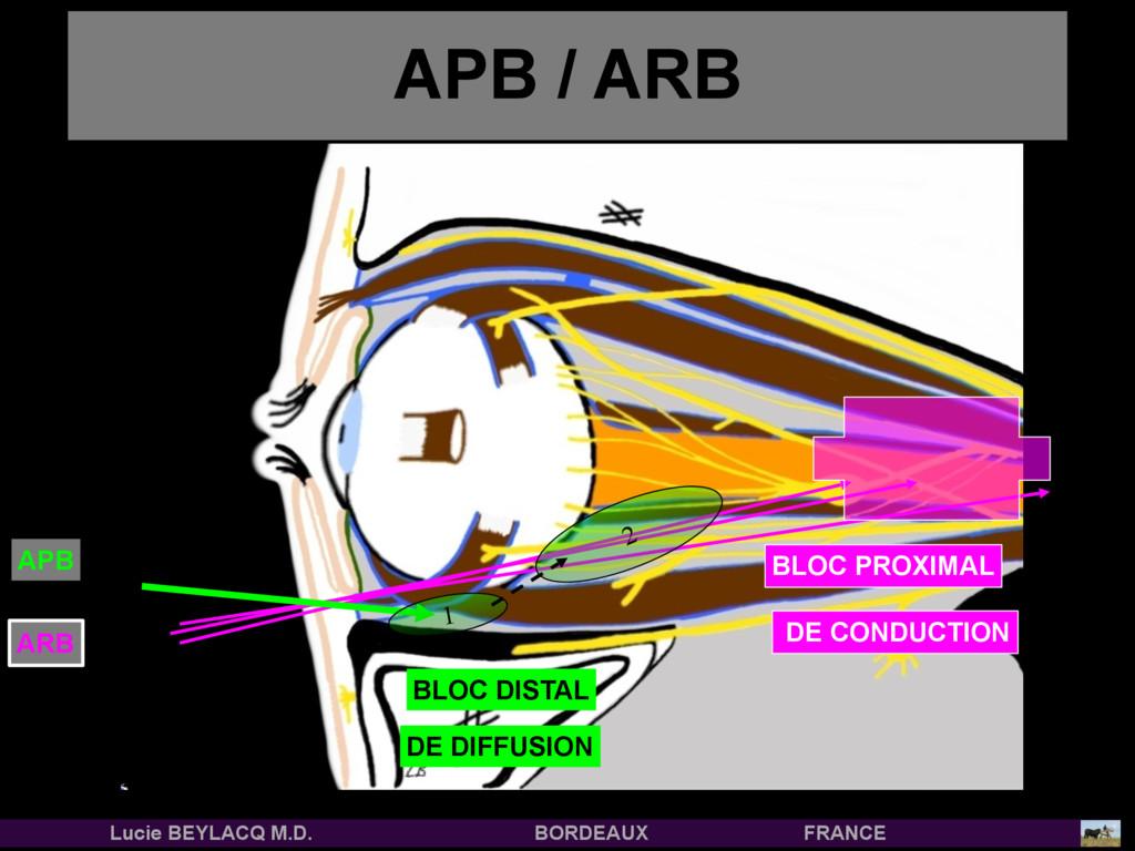APB / ARB ARB 2 1 APB DE CONDUCTION BLOC PROXIM...