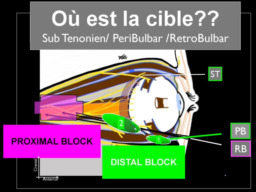 APB / ARB RB 2 1 PB CONDUCTION PROXIMAL BLOCK...