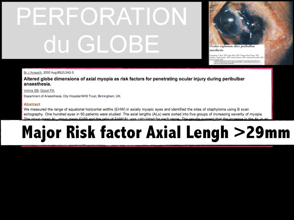 STAPHYLOMA ? Major Risk factor Axial Lengh >29m...