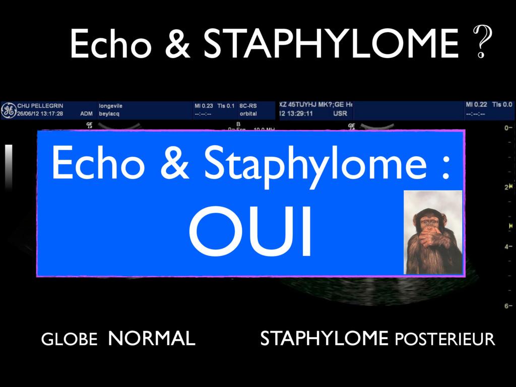 GLOBE NORMAL Echo & STAPHYLOME ? STAPHYLOME POS...