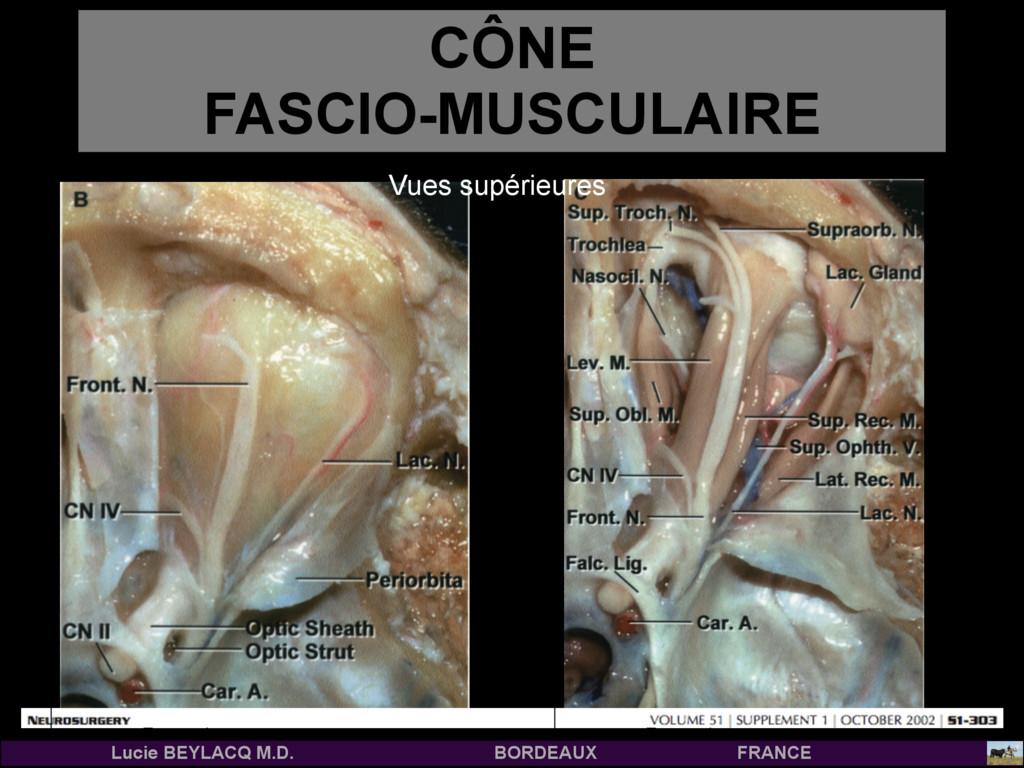CÔNE  FASCIO-MUSCULAIRE Antérieur Temporal Ant...