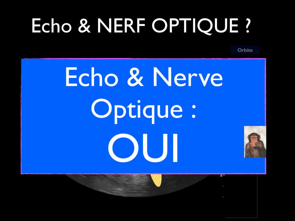 Orbite OPTIC NERVE Echo & NERF OPTIQUE ? Echo &...