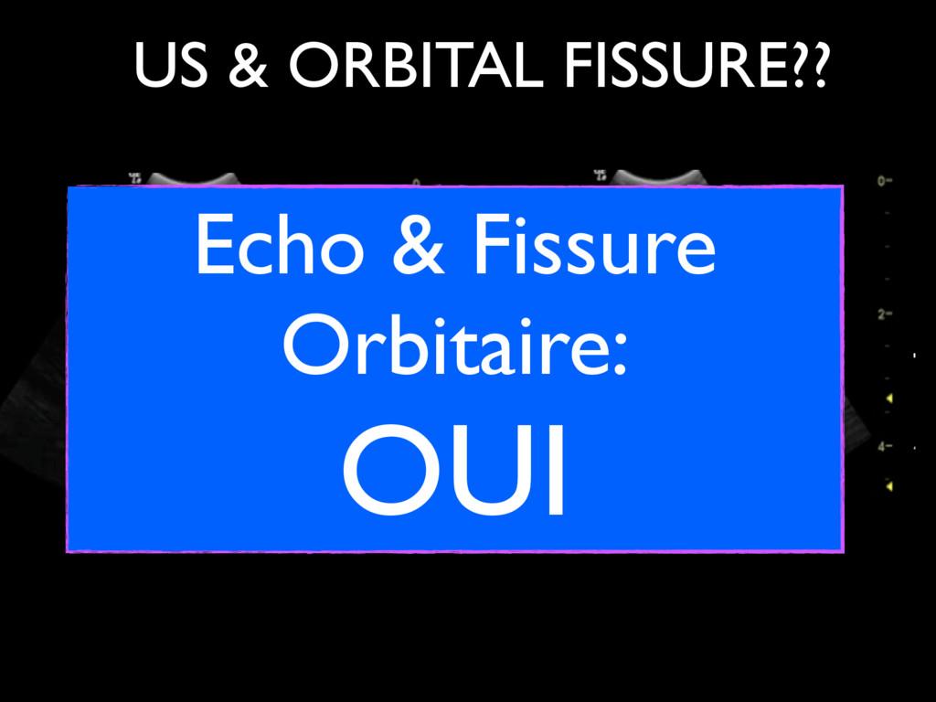 US & ORBITAL FISSURE?? Globe Optic Nerve Orbita...