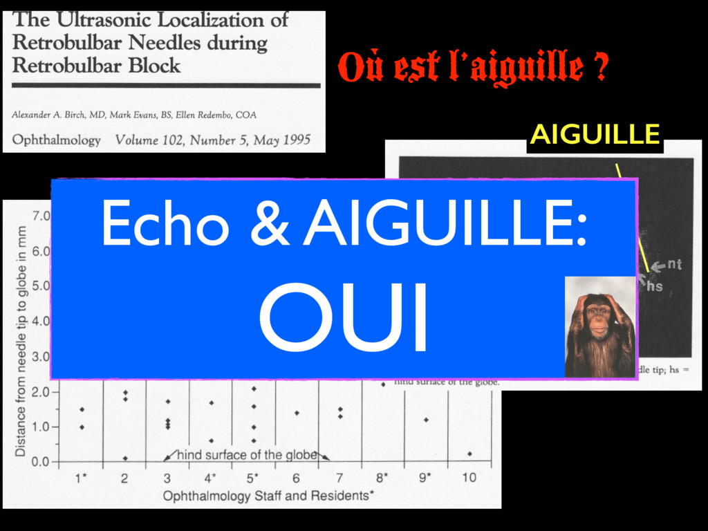 Où est l'aiguille ? AIGUILLE Echo & AIGUILLE: O...