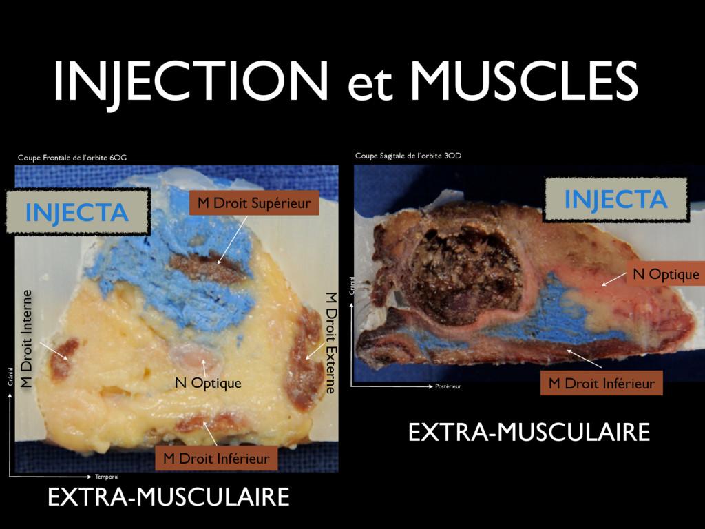 INJECTION et MUSCLES N Optique M Droit Supérieu...
