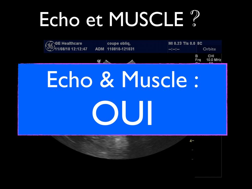 INFERIOR MUSCLE Orbite Echo et MUSCLE ? Echo & ...