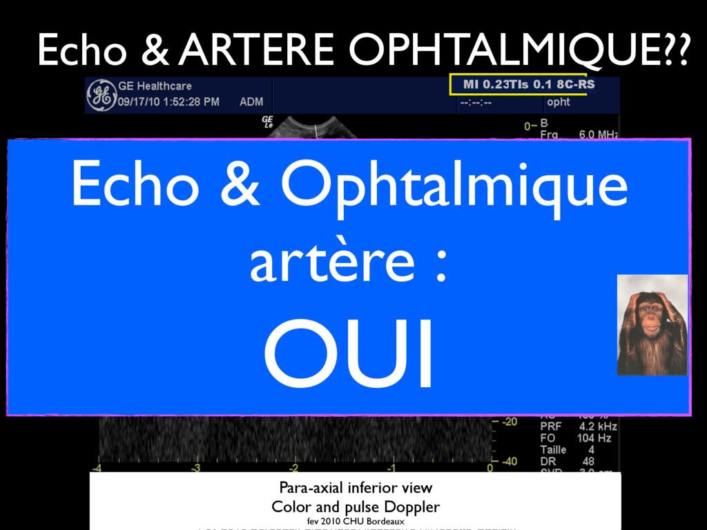 MI 0.23 TIs 0.1 8C-RS ARTERE OPHTALMIQUE Coupe ...