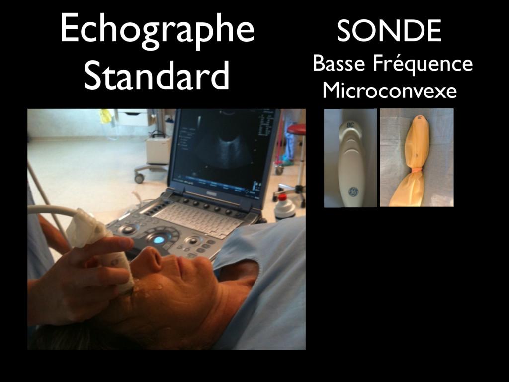 SONDE Basse Fréquence Microconvexe Echographe S...