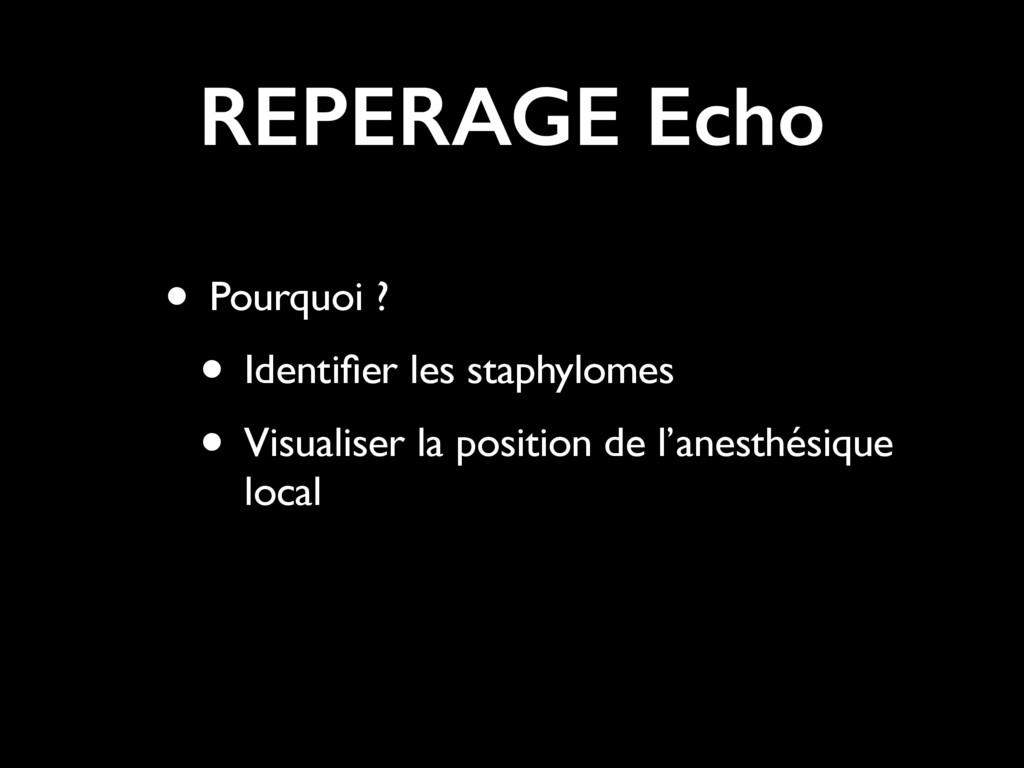 REPERAGE Echo • Pourquoi ? • Identifier les stap...