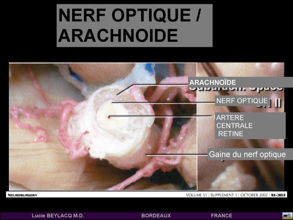 COUPE CORONALE du NERF OPTIQUE ARACHNOÏDE NERF ...