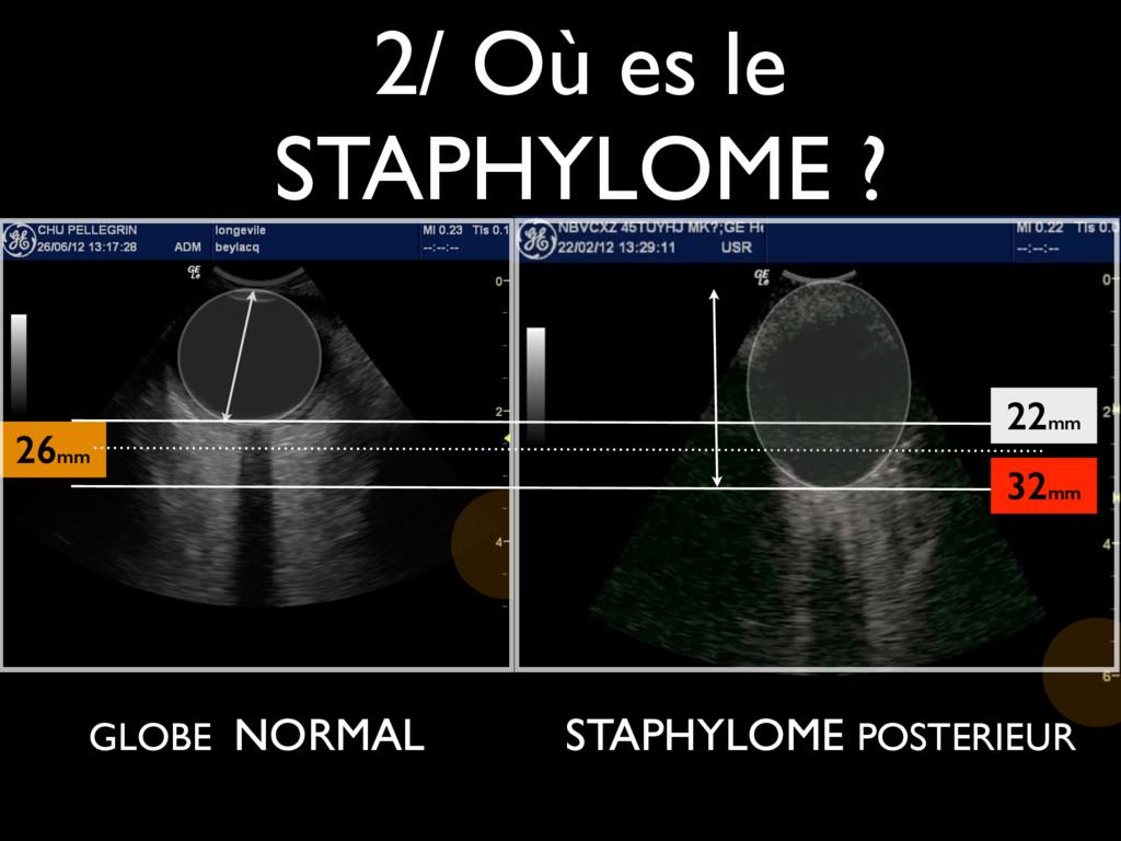 2/ Où es le STAPHYLOME ? 26mm GLOBE NORMAL 22mm...
