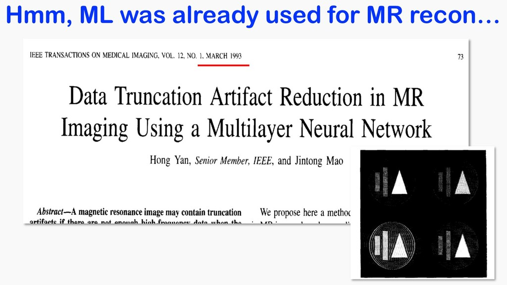 Hmm, ML was already used for MR recon…