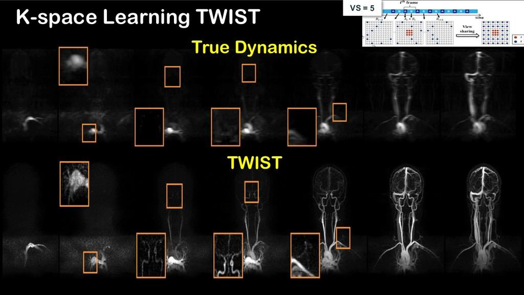K-space Learning TWIST TWIST True Dynamics VS =...
