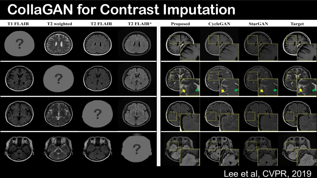 CollaGAN for Contrast Imputation Lee et al, CVP...