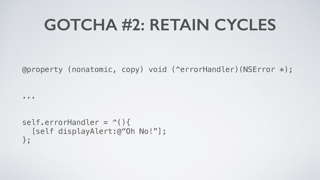 GOTCHA #2: RETAIN CYCLES @property (nonatomic, ...