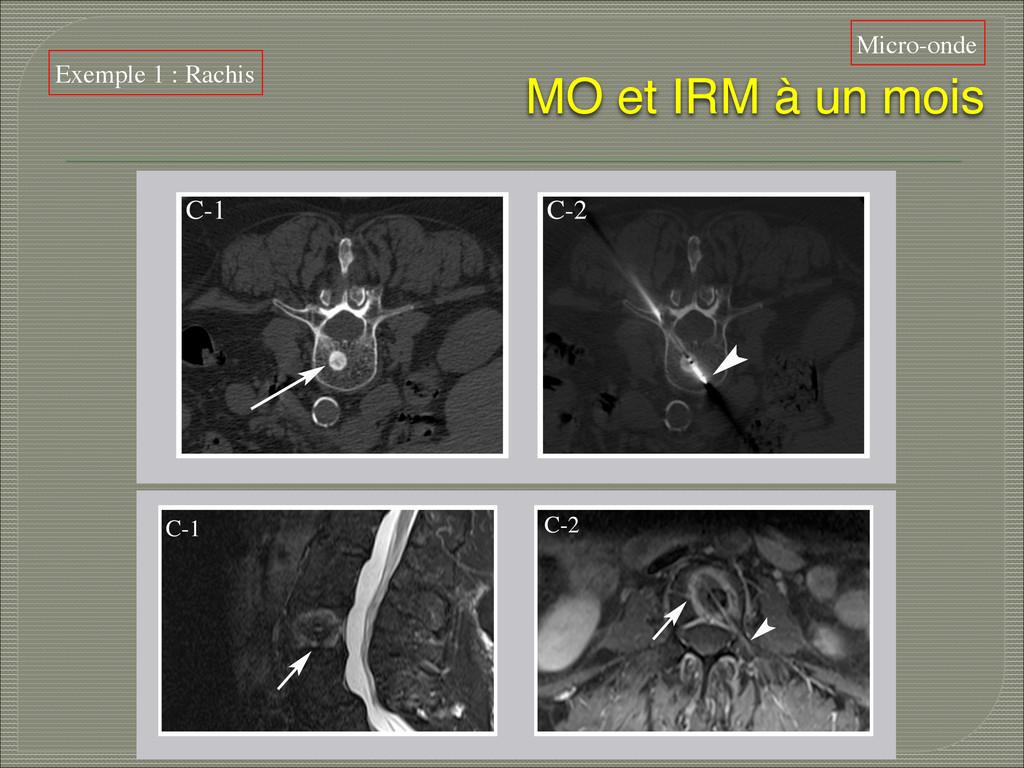 MO et IRM à un mois  Micro-onde Exemple 1 : Ra...