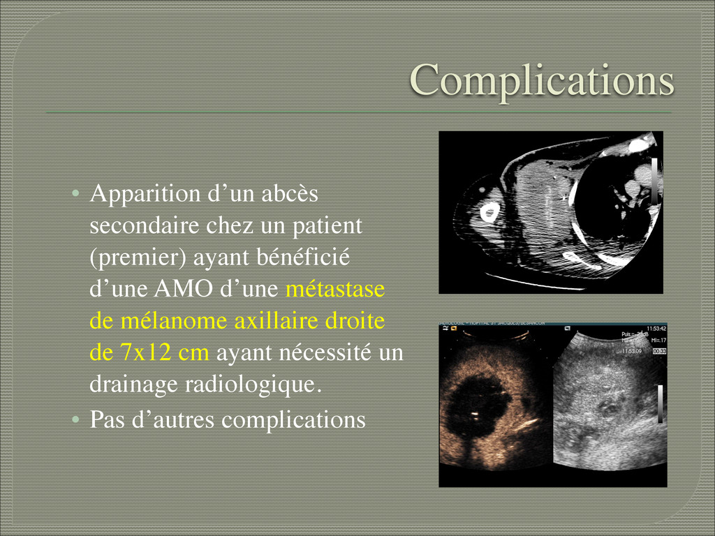 Complications • Apparition d'un abcès secondair...