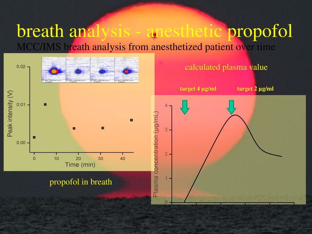 breath analysis - anesthetic propofol 0 10 20 3...