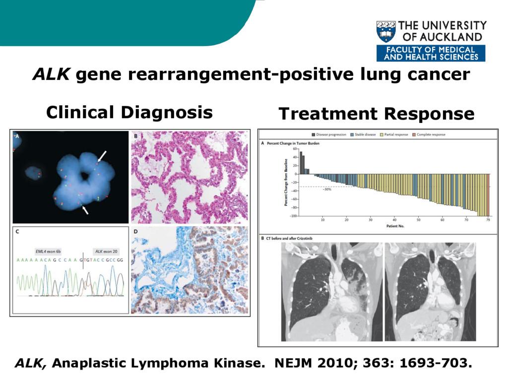 ALK, Anaplastic Lymphoma Kinase. NEJM 2010; 363...