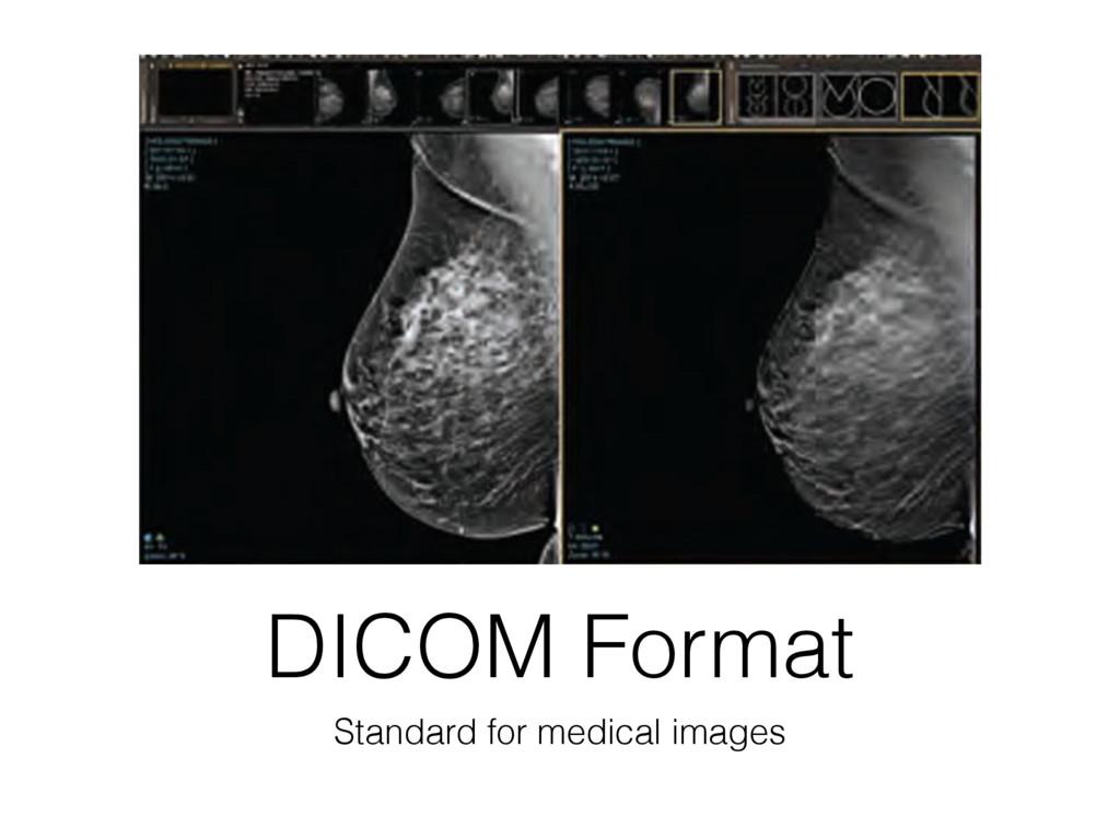 DICOM Format Standard for medical images