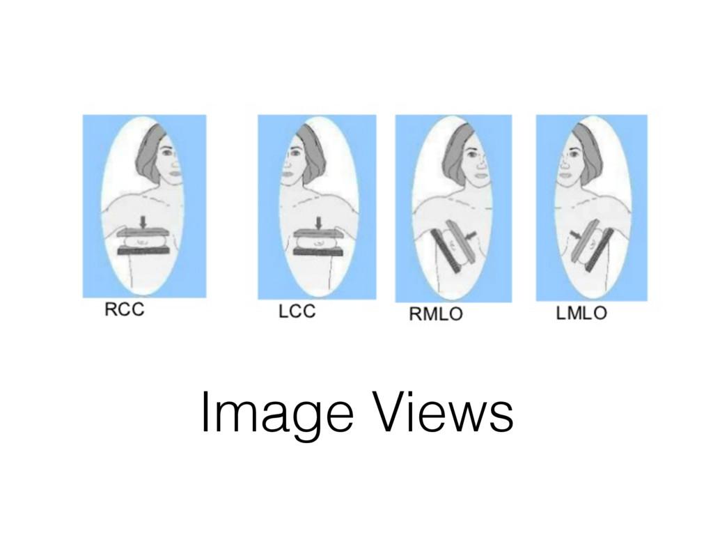 Image Views