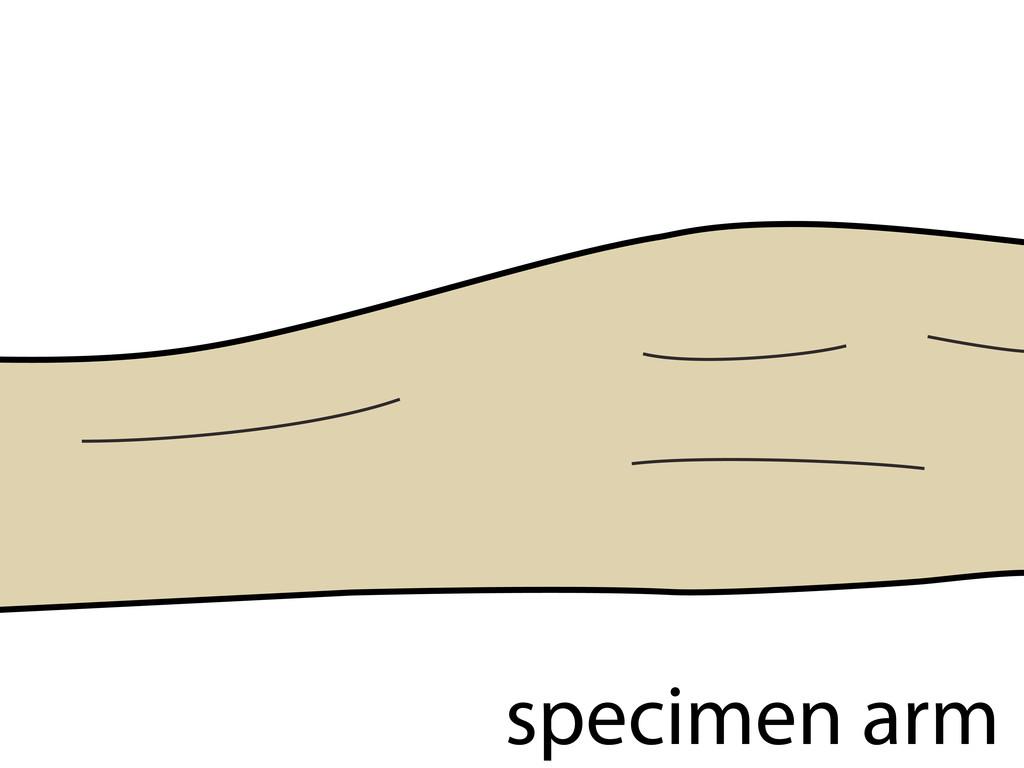 specimen arm
